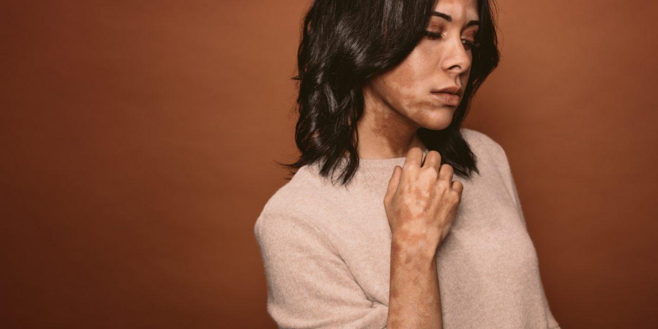 Waarom je met vitiligo beter uit de zon blijft