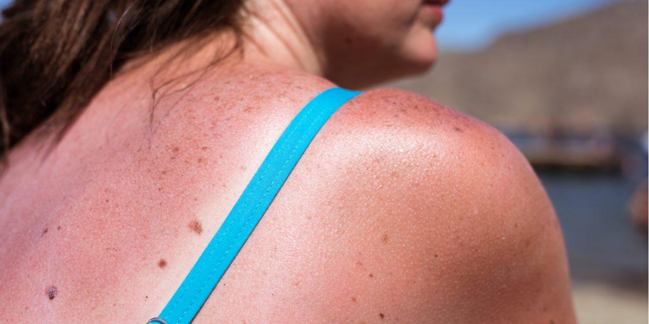 Onbezonnen zonnen kan je doden