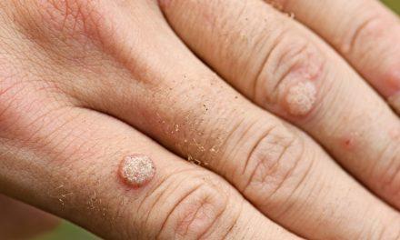 Hoe raak je snel verlost van wratten?