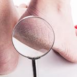 Wat kan je doen tegen ruwe huid en kloven op je voeten?