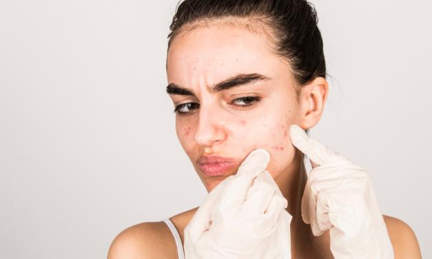 Wat kan je doen aan acné?