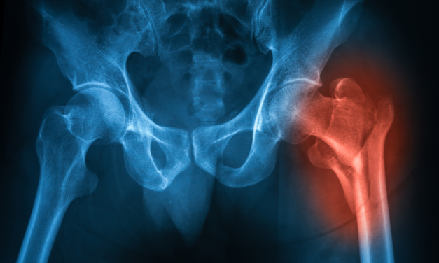 Vitamine D en K2 om osteoporose en botbreuken te voorkomen