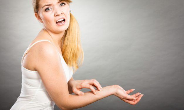 Ben je allergisch aan je eigen juwelen en kleding?