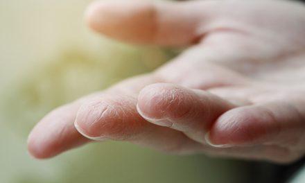 Last van gebarsten handen in de winter?