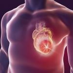 Ook bacteriën kunnen hartinfarct veroorzaken