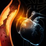 De tien geboden tegen hartinfarct